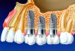 Дентальная имплантация зубов: преимущества и недостатки